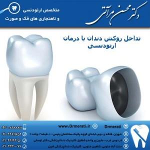 تداخل روکش دندان با درمان ارتودنسی