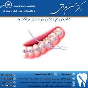 کشیدن نخ دندان در حضور براکت ها