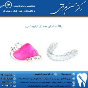 پلاک دندان بعد از ارتودنسی
