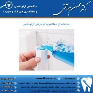 استفاده از دهانشویه در درمان ارتودنسی